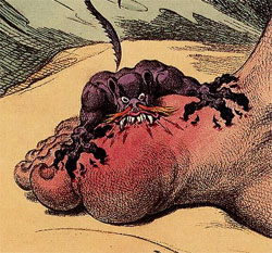 The Gout by James Gillray. Published May 14th 1799.
